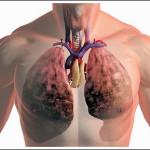 Среди профнедуг на Волыни лидируют заболевания органов дыхания